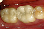 Dental Crown After Image
