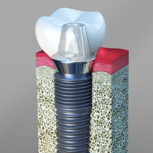 Guide to Dental implant